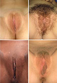 Genital Diversity.jpg